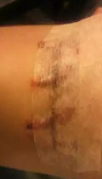 木梨憲武 左腕タトゥー 画像