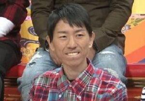 チュートリアル福田の病気画像